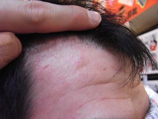 2009年2月3日脂漏性湿疹.jpg